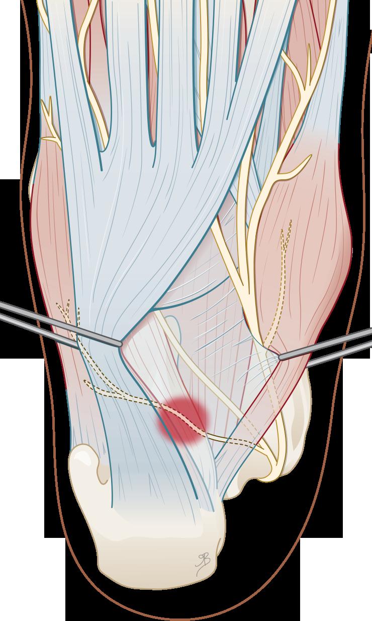 Abductor hallucis longus en de musculus quadratus