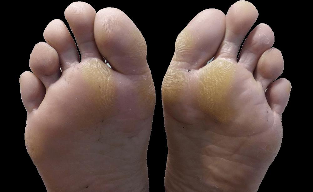 eelt op voeten