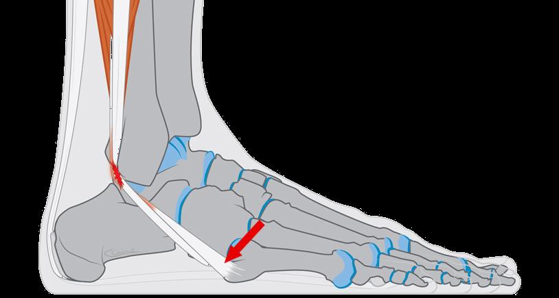 warme en dikke voet