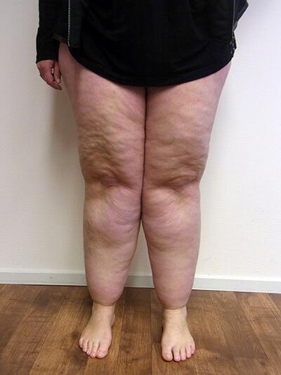 oorzaak lymfoedeem been