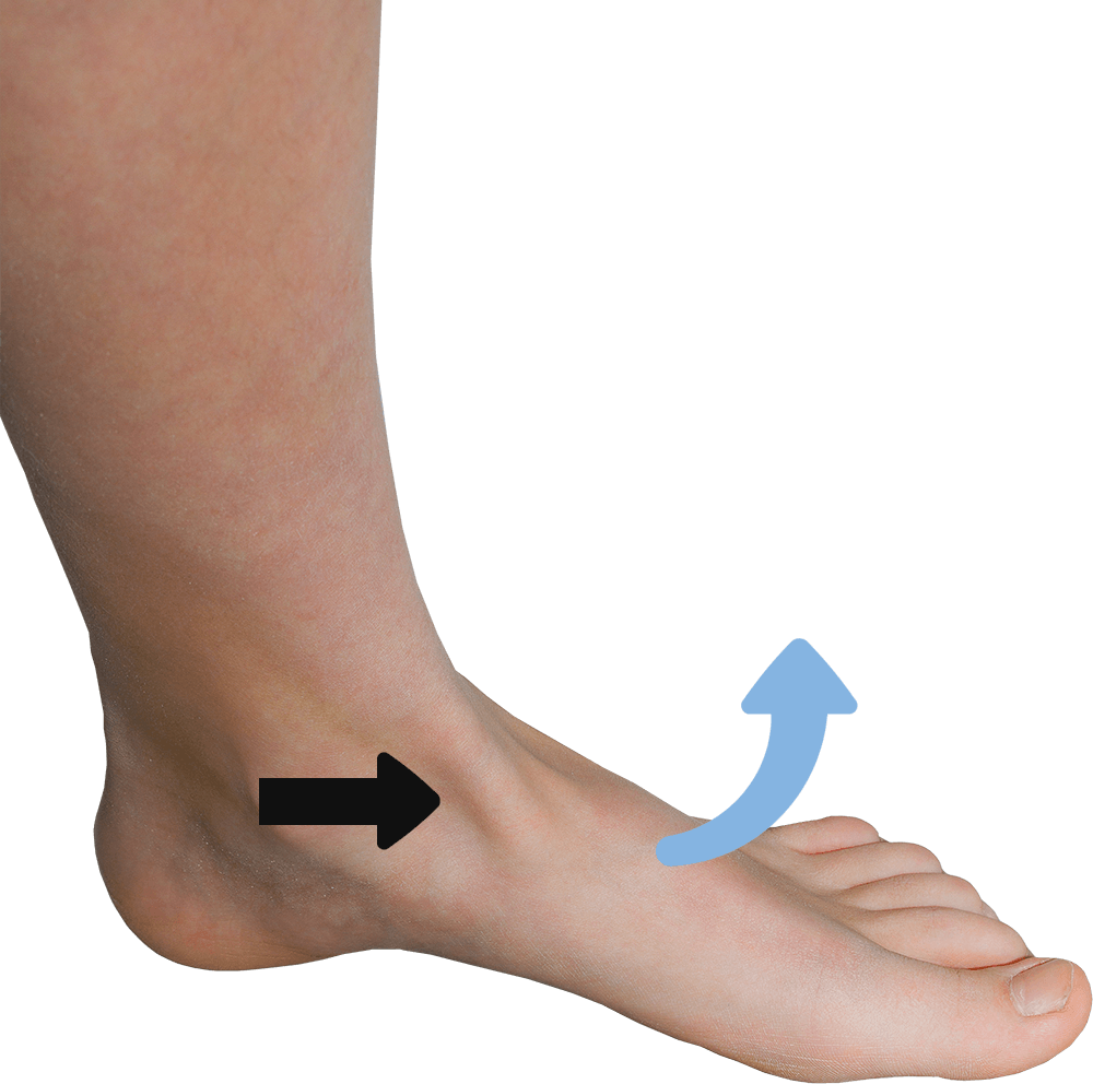 De blauwe pijl geeft de beweging van de voet aan die de tibialis anteriorspier (zwarte pijl) maakt