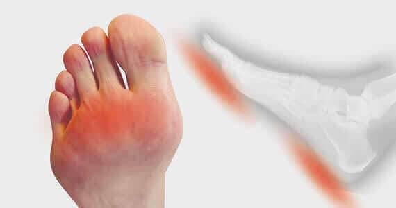 Schade aan het vetkussen van de voetzolen Dr. van Dalen