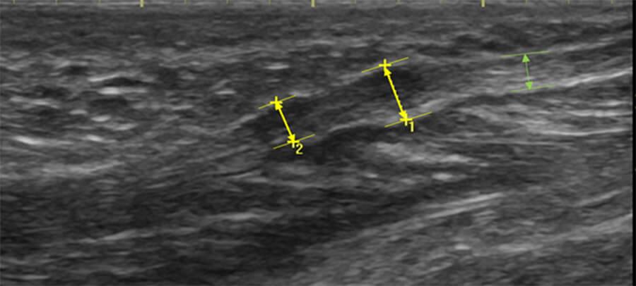 Echografisch onderzoek van ziekte van Ledderhose
