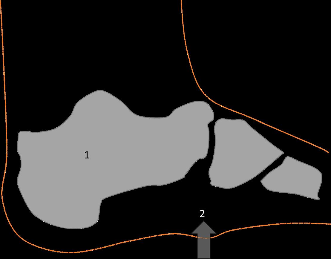 Knobbels onder de voeten (ziekte van Ledderhose)