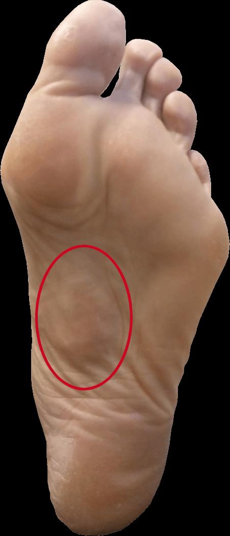 Verdikking zichtbaar in voetzool binnen rode cirkel