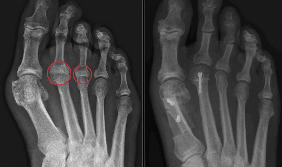 verkeerde stand middenvoetsbeentjes - operatieve behandelingen