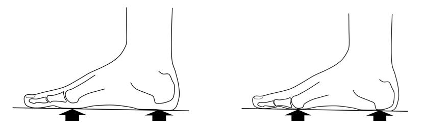 Schade aan het vetkussen onder de voet
